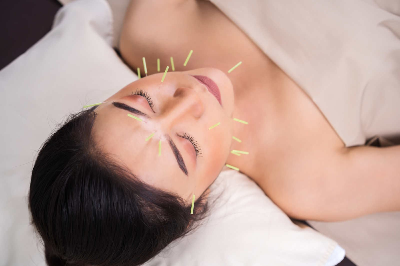 Scarborough Traditional Acupuncture