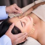 Acupuncture - Can It Really Help?