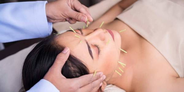 Acupuncture – Can It Really Help?