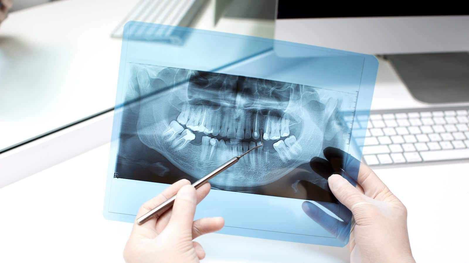 Rosy Dental of Fountain Valley